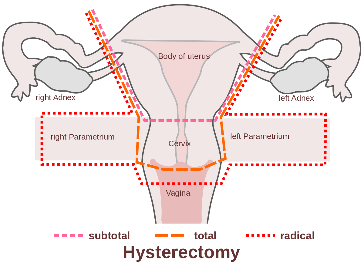 fibroids, common tumors along the uterine wall, are typically benign and  develop in